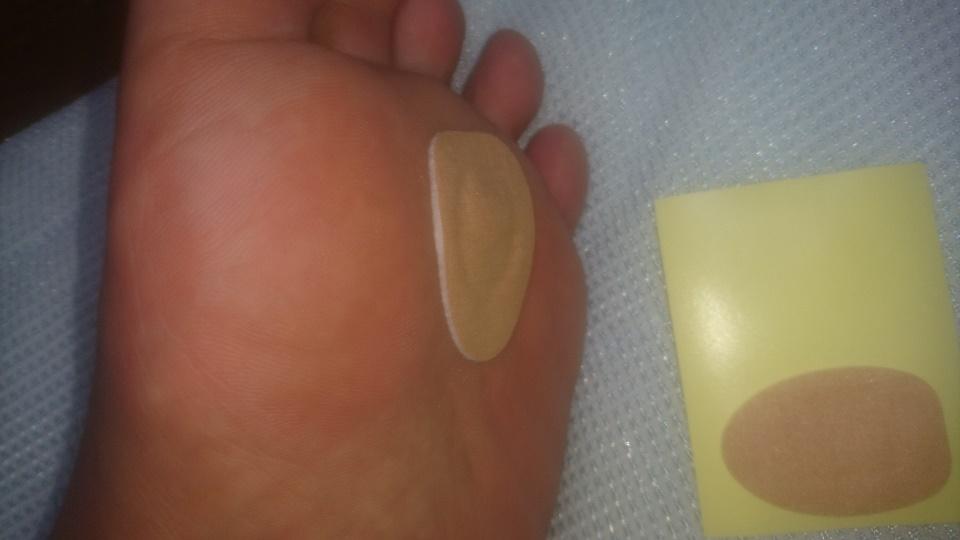 DIY] 足裏の魚の目が痛い!そして臭い!ウオノメコロリで治るか